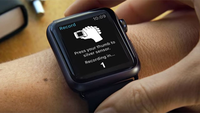 Un dispositivo en tu Apple Watch para monitorizar  problemas cardíacos